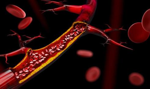 Kan tarmbakterier gi åreforkalkning?