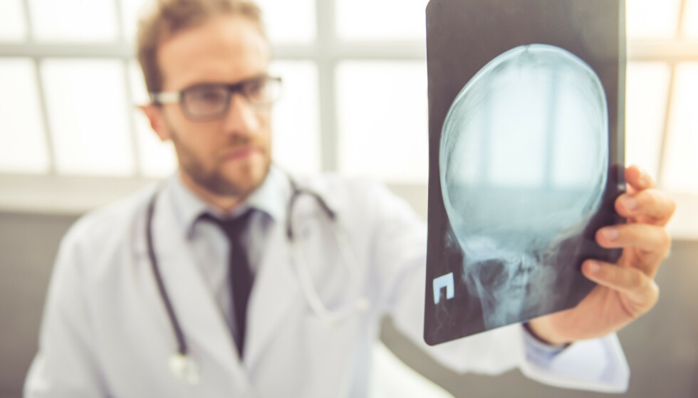 Studie viser at om du pådrar deg hjernerystelse er sjansen større for å stå uten jobb fem år senere. Foto: George Rudy / Shutterstock / NTB scanpix