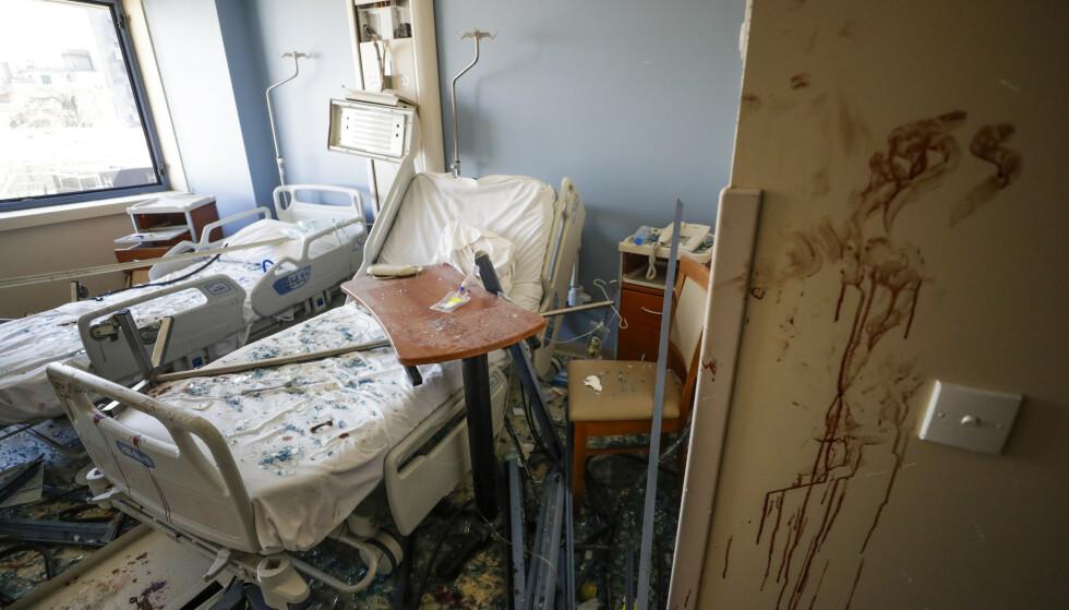 Et av Beiruts største sykehus fikk så store skader i eksplosjonen at det måtte stenge. Foto: AP / NTB scanpix