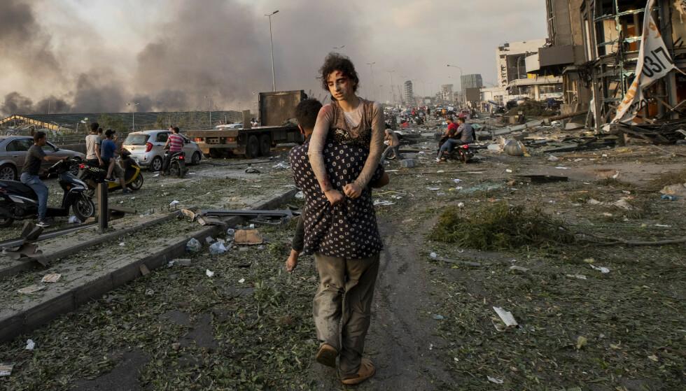 Syriske Hoda Kinno (11) blir båret bort av sin onkel, Mustafa Kinno, etter den enormt kraftige eksplosjonen i Beirut 4. august. Søsteren hennes Seda (15) omkom, mens Hoda brakk nakken i eksplosjonen. Foto: Hassan Ammar / AP / NTB scanpix