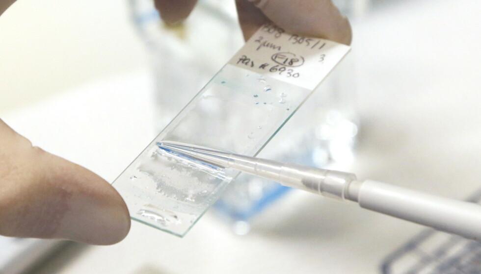 At antall nye brystkrefttilfeller øker i Norge er delvis et tegn på bedre diagnostikk. Ved avdeling for kreftbehandling på Radiumhospitalet i Oslo blir prøver fra pasienter med blant annet lungekreft og brystkreft (bildet) tatt hånd om. Avdelingen begynte sin oppbevaring av labprøver allerede på 1980-tallet. Illustrasjonsfoto: Lise Åserud / NTB