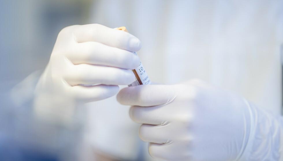 Forskningsprosjektet COVITA ved Sørlandet sykehus og Sykehuset Telemark har håp om å snakke med og teste mer enn 1.000 deltakere regelmessig de neste tre årene. Der er målet å finne ut mer om dem som har testet positivt på koronaviruset SARS-CoV-2: om immunitet, sporbare senfølger av infeksjonen og hvilke faktorer som kan ha gitt økt risiko for å bli smittet. Illustrasjonsfoto: Stian Lysberg Solum / NTB