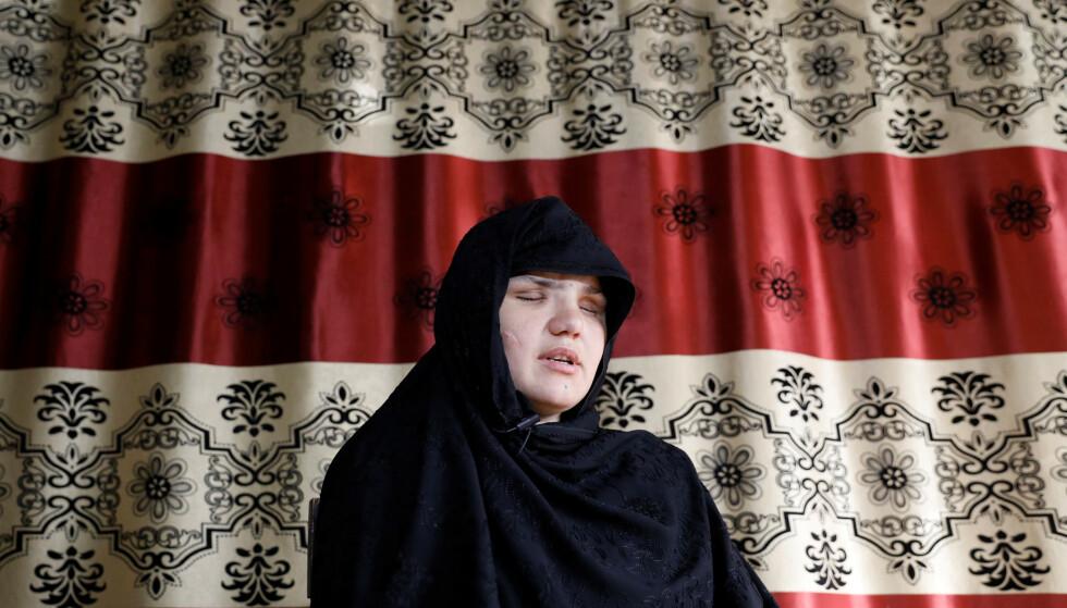Khatera (33) ble blindet i et grotesk angrep i Afghanistans hovedstad Kabul. Foto: NTB scanpix / REUTERS/Mohammad Ismail