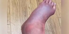 Image: Skistjerna skar grimaser da hun fikk se foten