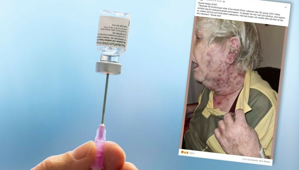 Et bilde av en eldre mann med utslett eller sår på halsen har blitt delt en rekke ganger på Facebook og Twitter.