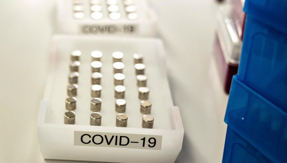 Analyse av prøver med coronavirus der man tester for den britiske virusvarianten B117.Foto: Henning Bagger / Ritzau Scanpix / AFP) / Denmark OUT / NTB scanpix