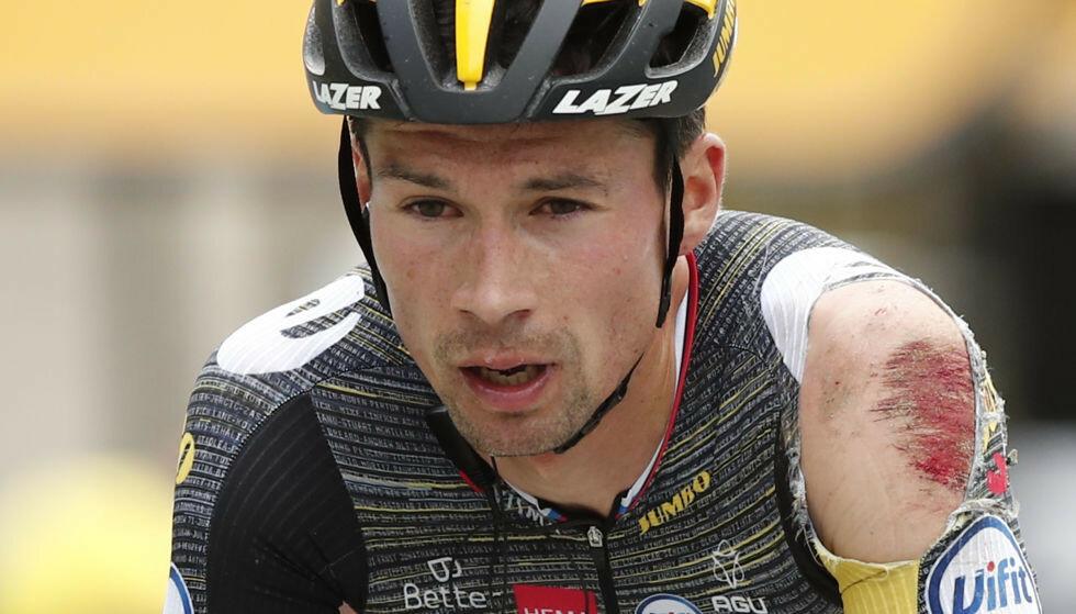 Tim Merlier skadet seg stygt på dagens etappe. Foto: AFP