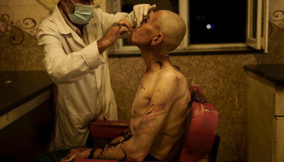 Taliban plukker opp narkotikabrukere fra gata i Kabul og tar dem med til Avicenna-sykehuset for rehabilitering. Der blir de barbert før 45 tøffe dager venter. Foto: Felipe Dana / AP / NTB.